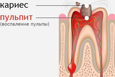 Пульпит зуба - схема