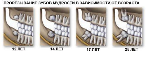 Рост зуба мудрости - схема