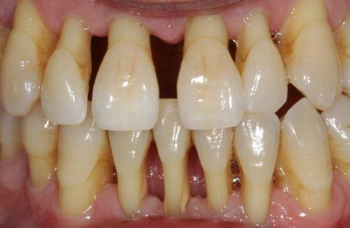 Рецесия десны оголяет корни зубов