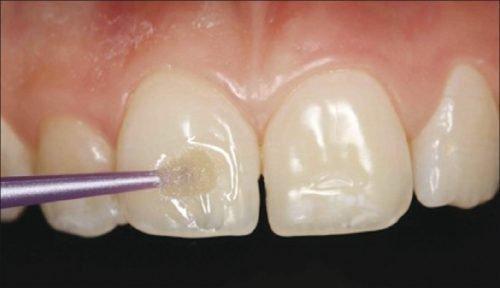 Реминерализация эмали на зубах