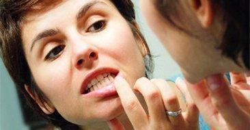 Самодиагностика кариеса на зубах