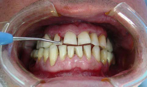 Зубы шатаются и болят, десны кровоточат