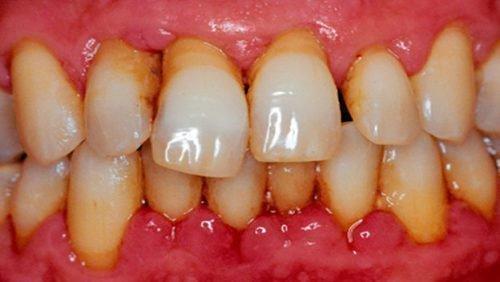 Шатание и выпадение передних зубов