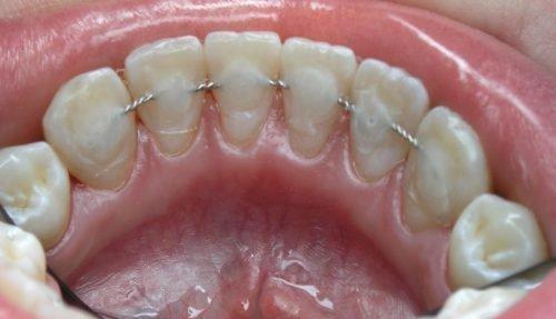 Лигатурная шина при вывихе зубов