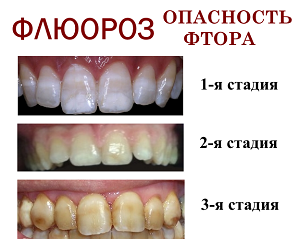 Стадии развития флюороза на зубах