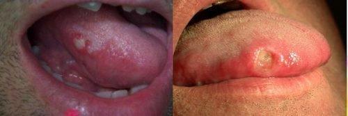 Стоматит на языке - болезненные высыпания