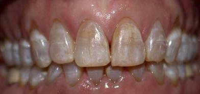 Тетрациклиновые зубы из-за приема антибиотиков
