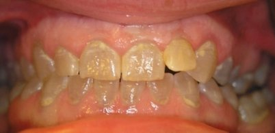 Тяжелая форма гипоплазии зубов