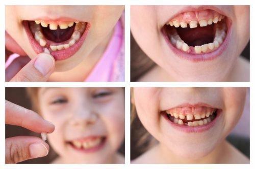 Удаление молочных зубов м аппликационной анестезией