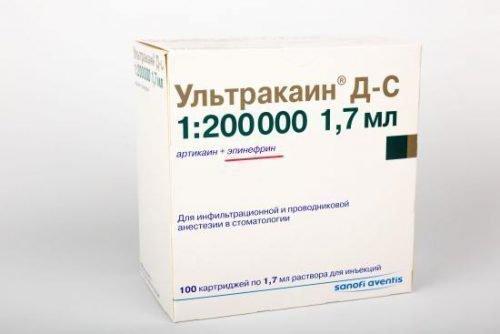 Ультракаин - современный анестетик