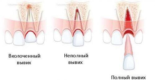 Три вида вывиха зуба