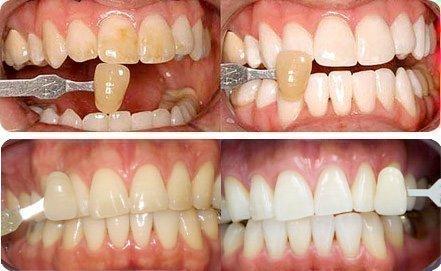 Виниры на зубы спячут гипоплазию