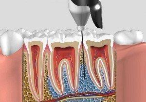 Внутрикостная анестезия при удалении зуба