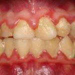 Причины желтого налета на зубах у ребенка