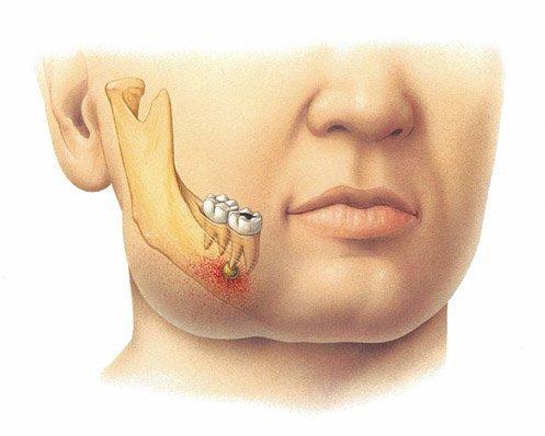 Зубной флюс с опуханием