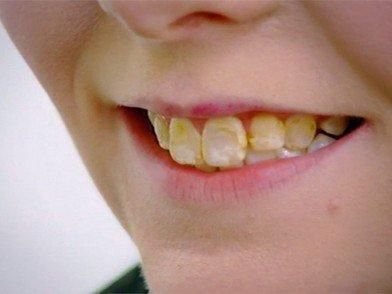 Зубной налет у ребенка