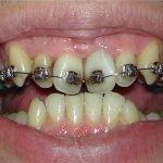Почему могут шататься зубы в брекетах