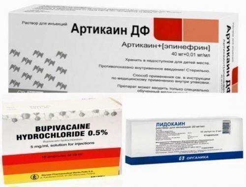 Препараты для анестезии в стоматологии