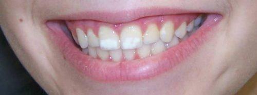 Белые пятна на зубах