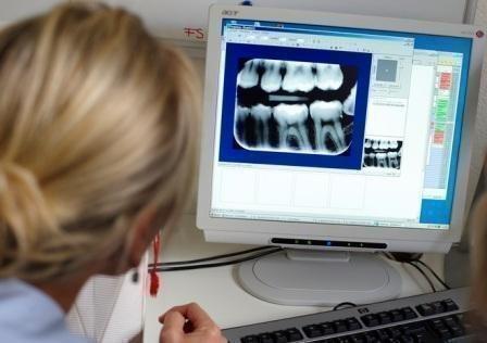 Визиография - безопасный рентген