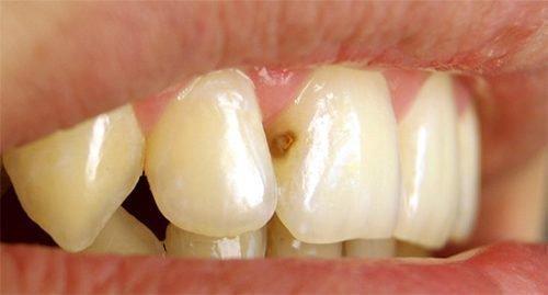 Контактный кариес на зубах
