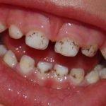Почему налет на зубах появляется у ребенка