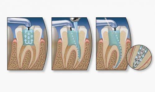 Депульпация зуба - схема