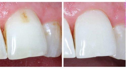 Удаление кариеса на зубе