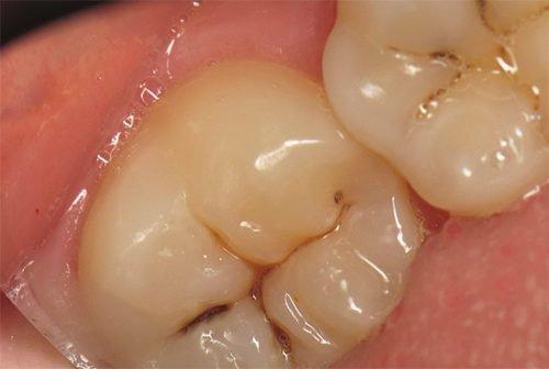 Фиссурный кариес на зубах