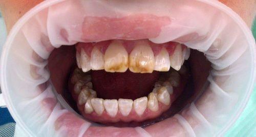 Флюороз зубов - пятна разного цвета и формы