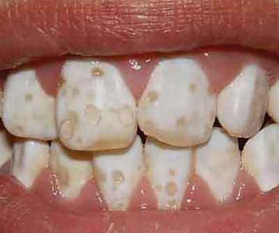 Гипоплазия зубов в запущенном виде