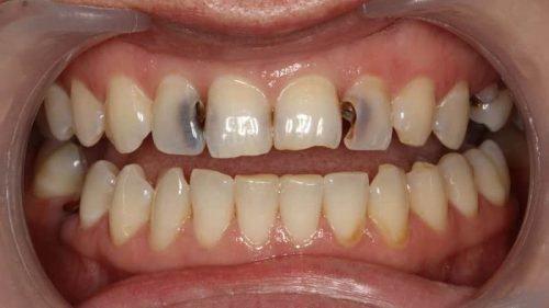 Глубокий кариес на зубах