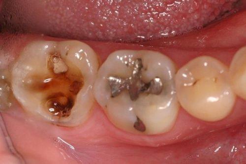 Гнойный пульпит зуба