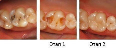 Этапы лечения кариеса зубов