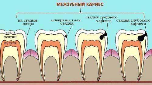 Как развивается кариес зубов