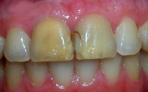 Кариес под пломбой на фронтальном зубе