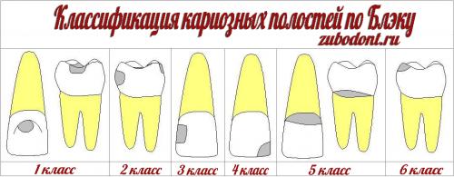 Классификация по Блэку кариозных повреждений