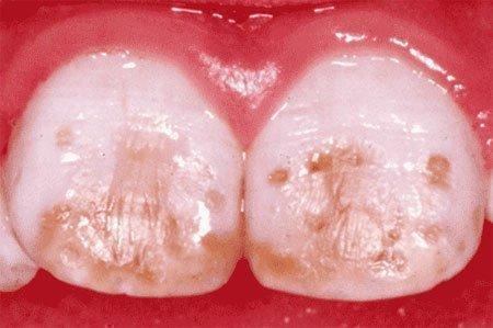 Пятна на зубах имеют разное происхождение