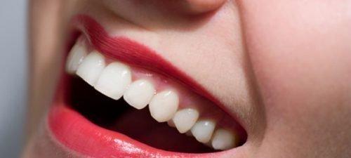 Красивые и здоровые зубы без кариеса