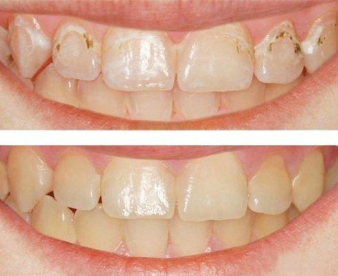 Лечение без сверления полностью восстанавливает эмаль зубов