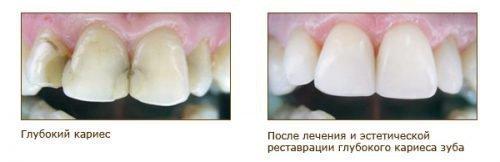 Лечение кариеса пломбированием зубов