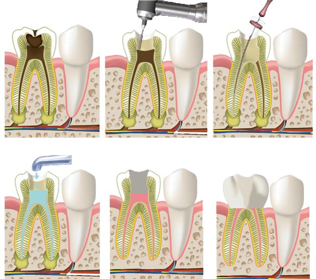 Что делать если зуб болит после установки пломбы в том числе после пломбирования каналов