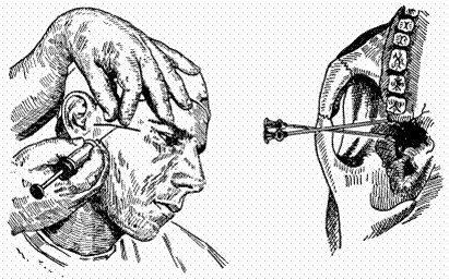 Методика анестезии Лагарди