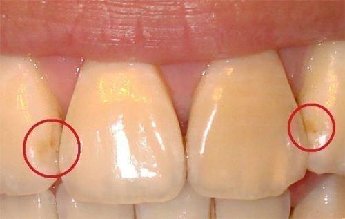Кариес между зубами - пятно