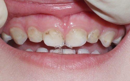 Начальный кариес на молочных зубах можно вылечить