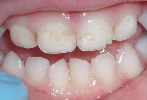 Кариес на молочных зубав