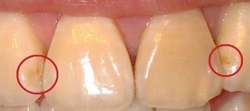 Кариес на стадии пятна между зубами