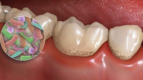 Налет на зубах под микроскопом