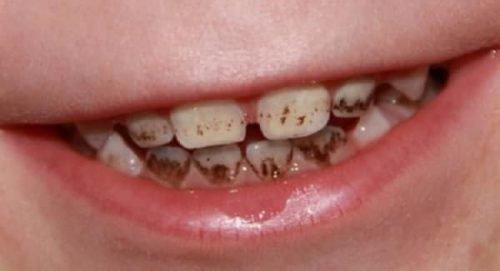 Налет Пристли у ребенка на зубах