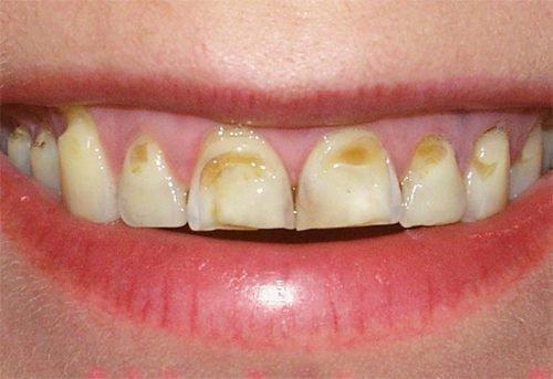 Некрасивые зубы с кариесом